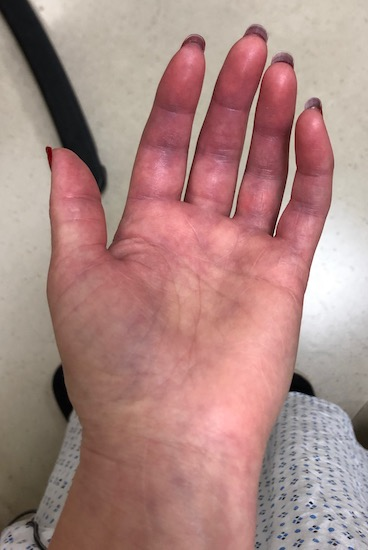 The palm side up of a swollen hand that is turning purple in color