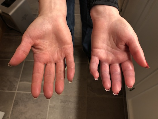 Two hands side by side one looks normal and the other is swollen and will not open all of the way with the palm side up.