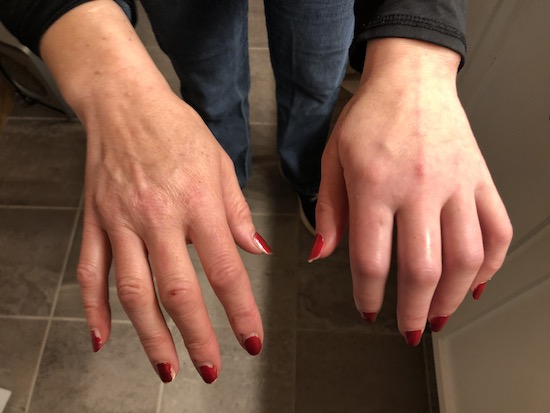 Two hands side by side with the one on the right looking normal and the one on the left swollen, discolored with a limited range of motion